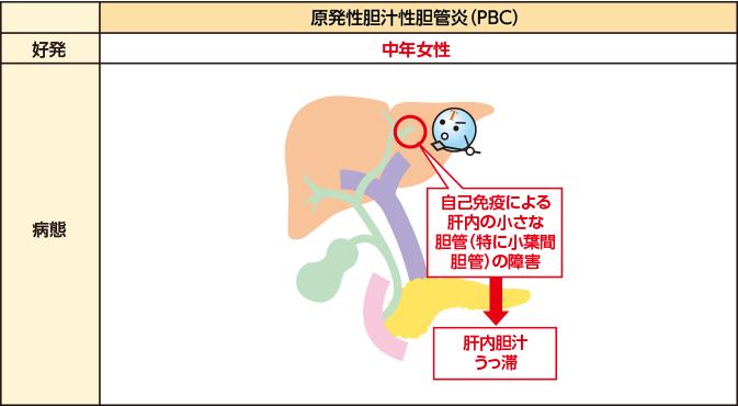 性 炎 胆管 硬化 原発 性