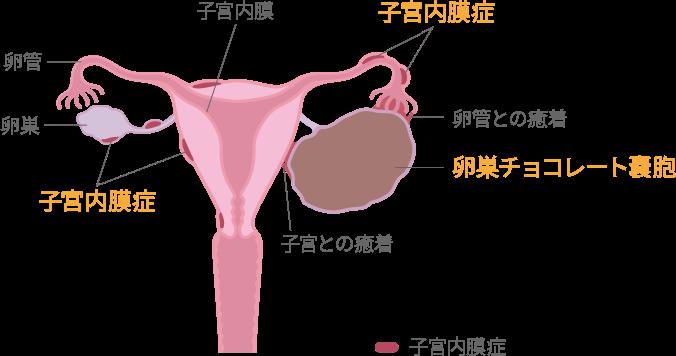 治療 症 子宮 膜 内
