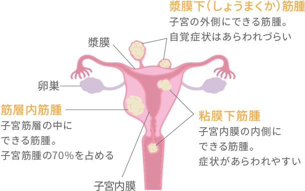 子宮筋腫について 早めに気づいて!女性に多い病気と症状 知っておき ...